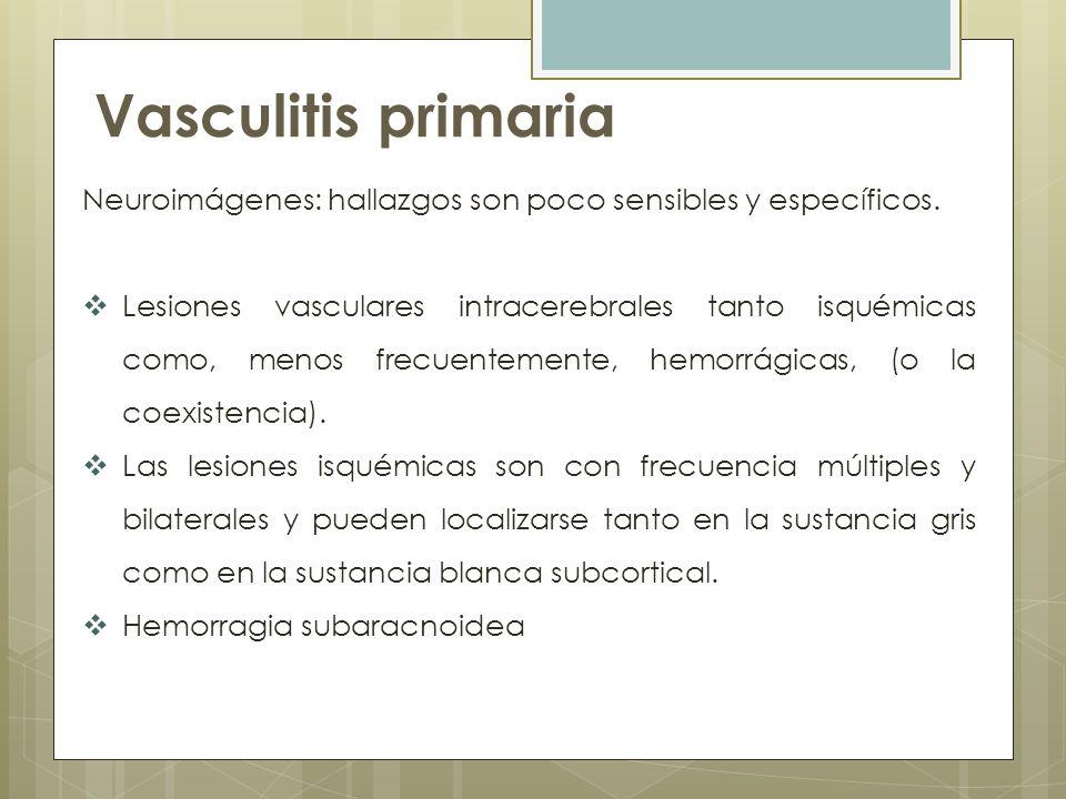 Vasculitis primaria Neuroimágenes: hallazgos son poco sensibles y específicos.