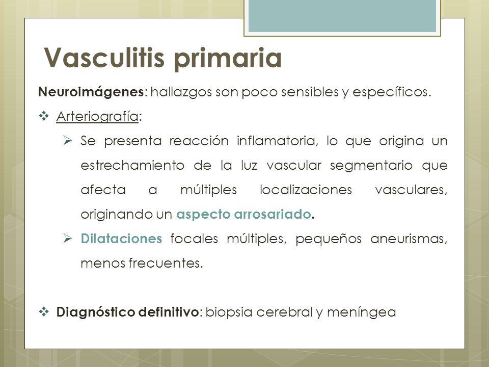 Vasculitis primaria Neuroimágenes: hallazgos son poco sensibles y específicos. Arteriografía: