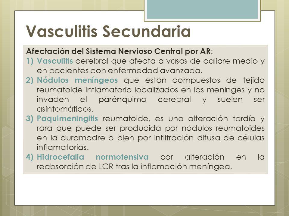 Vasculitis Secundaria