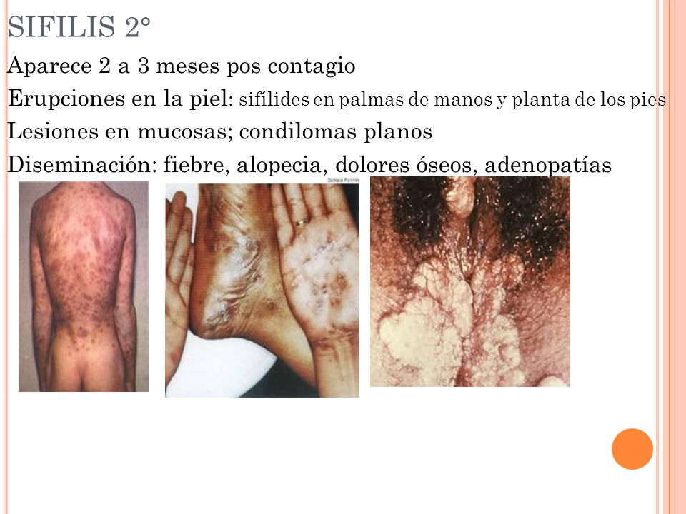 SIFILIS 2°