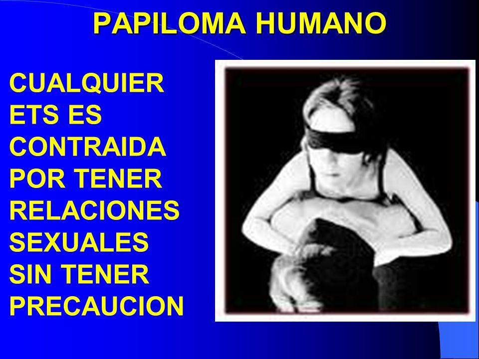 PAPILOMA HUMANO CUALQUIER ETS ES CONTRAIDA POR TENER RELACIONES SEXUALES SIN TENER PRECAUCION