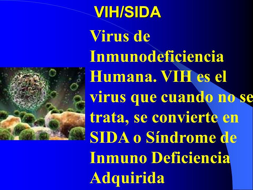 VIH/SIDA Virus de Inmunodeficiencia Humana.
