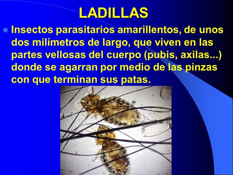 LADILLAS