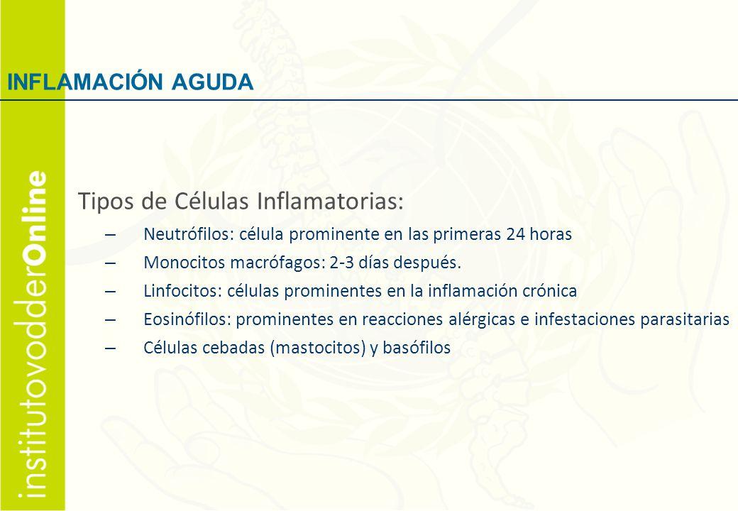 Tipos de Células Inflamatorias: