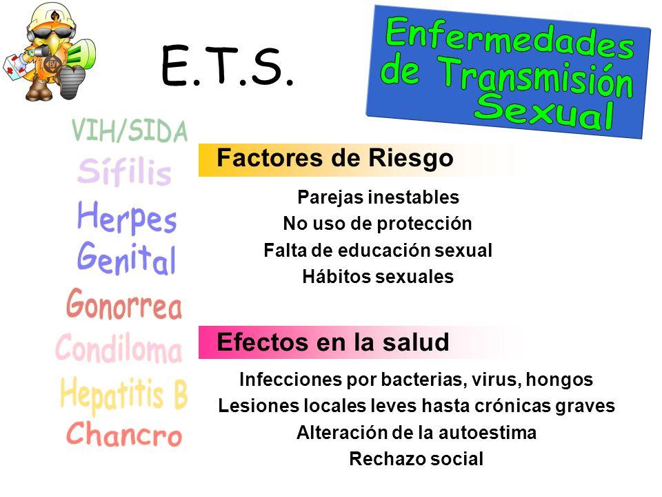 E.T.S. Enfermedades de Transmisión Sexual VIH/SIDA Sífilis Herpes