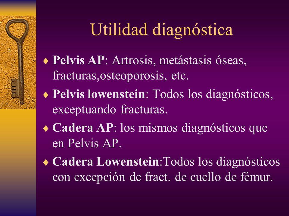 Utilidad diagnóstica Pelvis AP: Artrosis, metástasis óseas, fracturas,osteoporosis, etc.