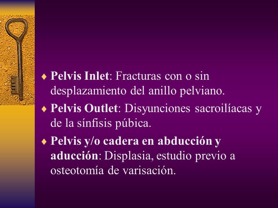 Pelvis Inlet: Fracturas con o sin desplazamiento del anillo pelviano.