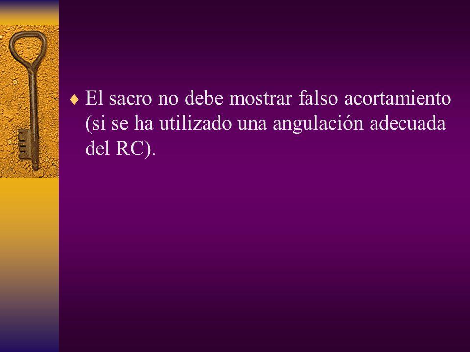 El sacro no debe mostrar falso acortamiento (si se ha utilizado una angulación adecuada del RC).