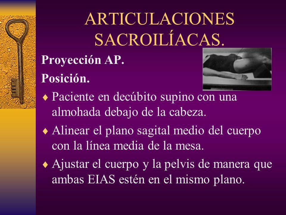 ARTICULACIONES SACROILÍACAS.