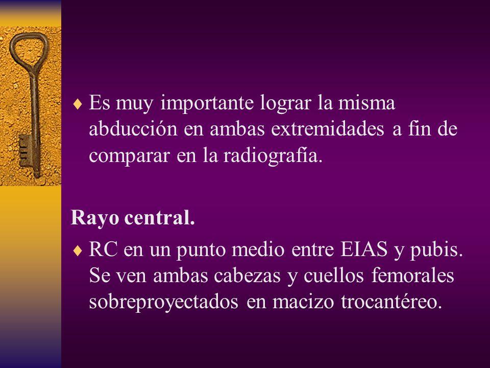 Es muy importante lograr la misma abducción en ambas extremidades a fin de comparar en la radiografía.
