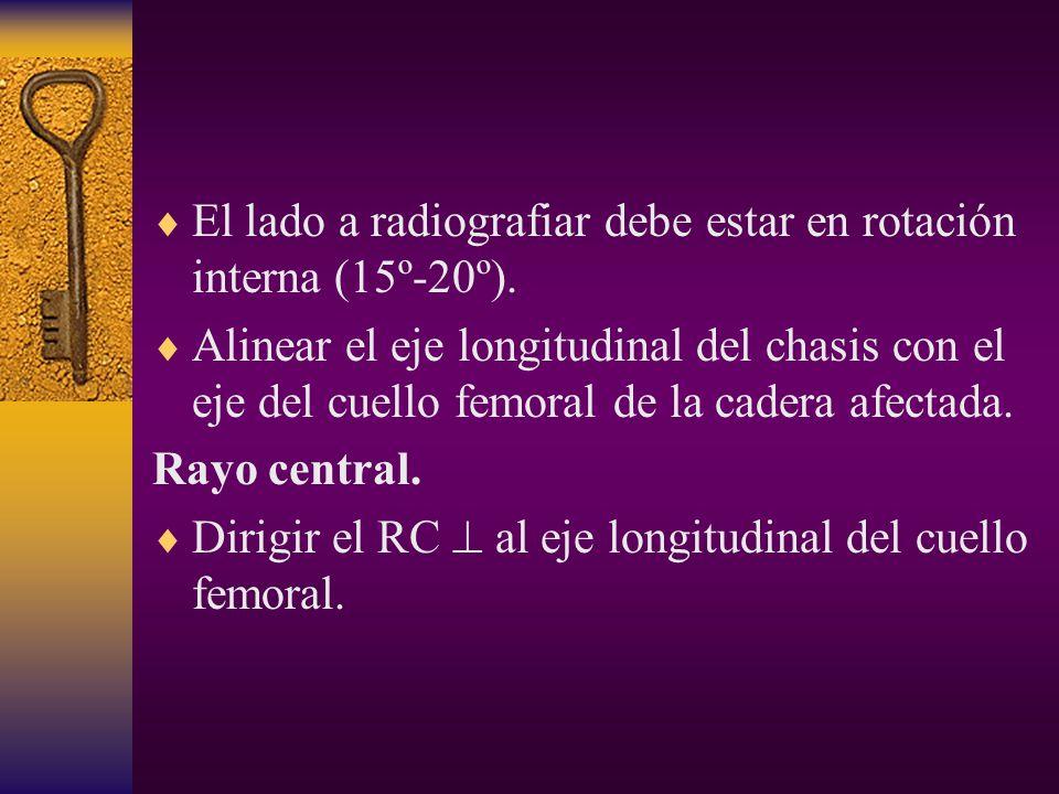 El lado a radiografiar debe estar en rotación interna (15º-20º).