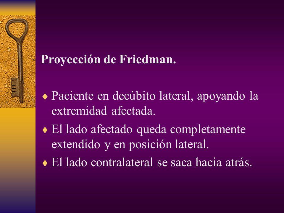 Proyección de Friedman.