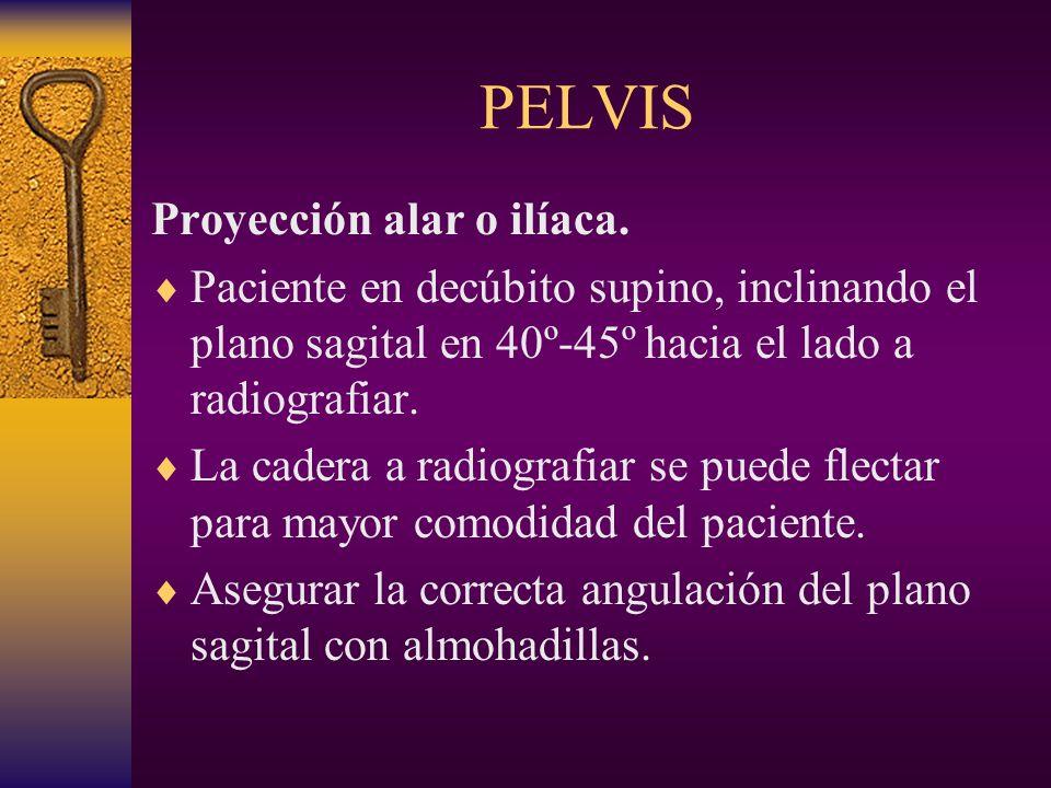 PELVIS Proyección alar o ilíaca.