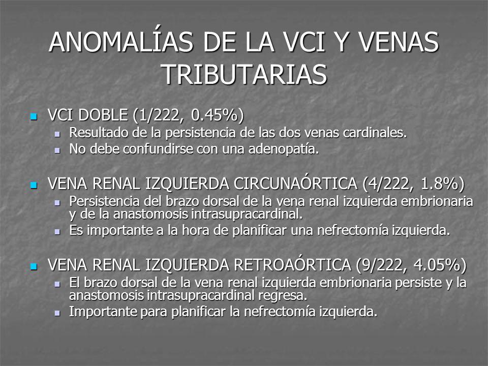 ANOMALÍAS DE LA VCI Y VENAS TRIBUTARIAS