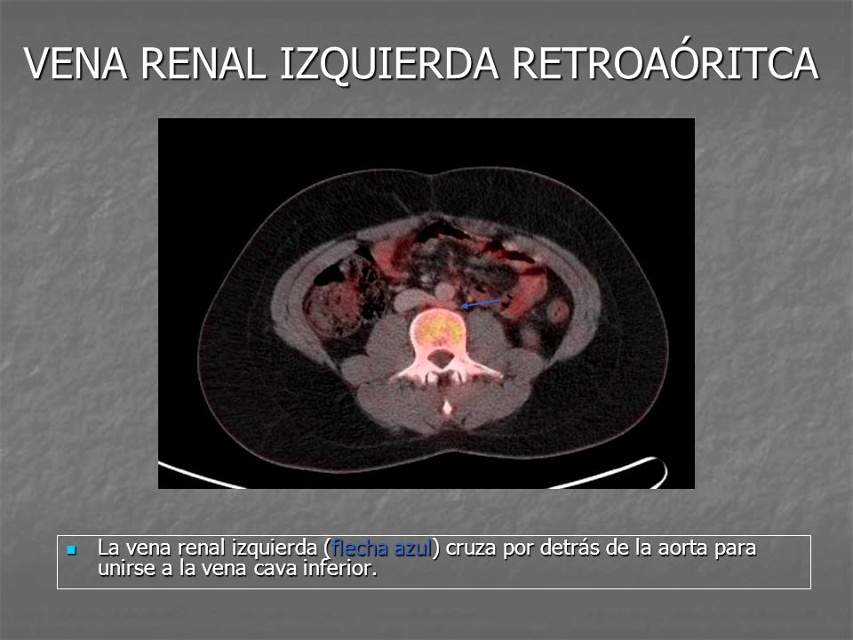 VENA RENAL IZQUIERDA RETROAÓRITCA