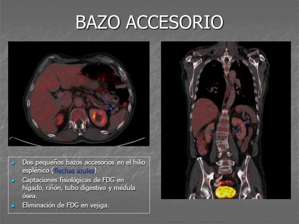 BAZO ACCESORIO Dos pequeños bazos accesorios en el hilio esplénico (flechas azules).