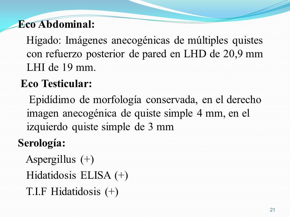Eco Abdominal: Hígado: Imágenes anecogénicas de múltiples quistes con refuerzo posterior de pared en LHD de 20,9 mm LHI de 19 mm.