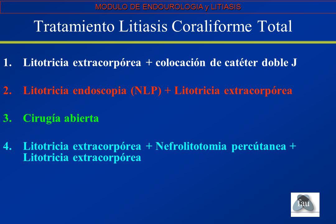 Tratamiento Litiasis Coraliforme Total