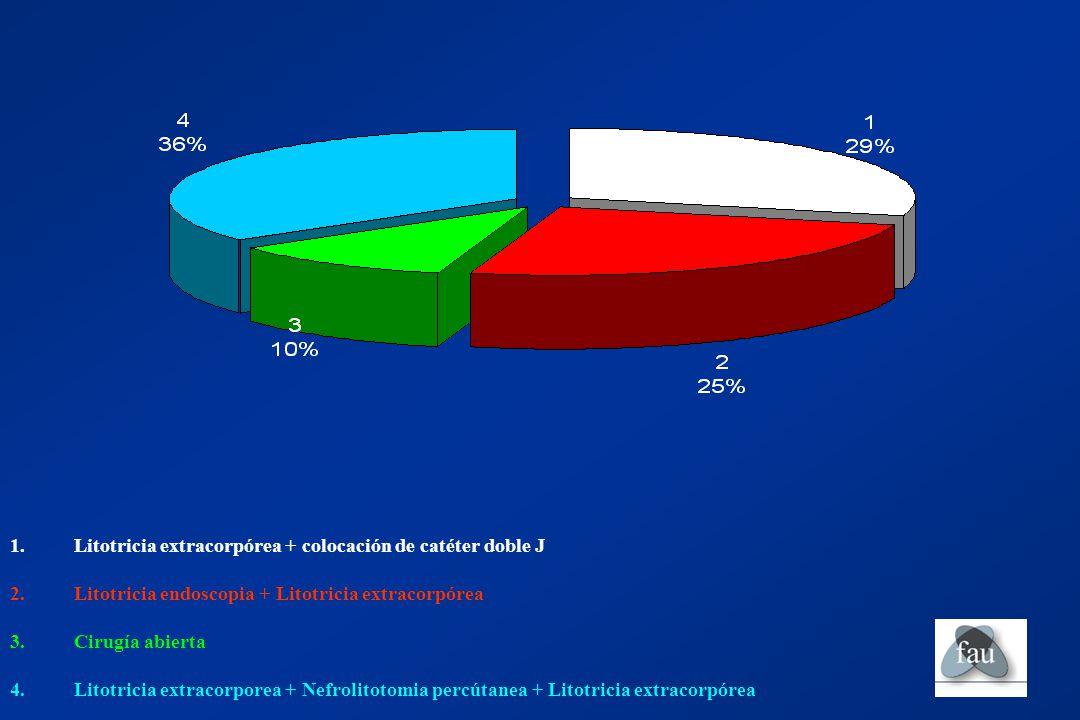 Litotricia extracorpórea + colocación de catéter doble J