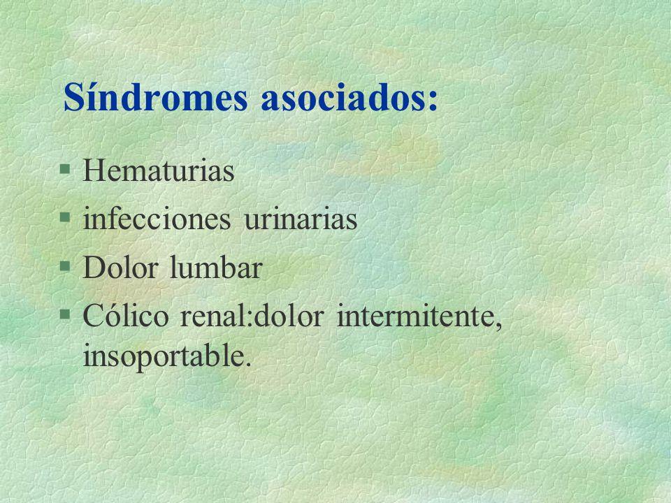 Síndromes asociados: Hematurias infecciones urinarias Dolor lumbar