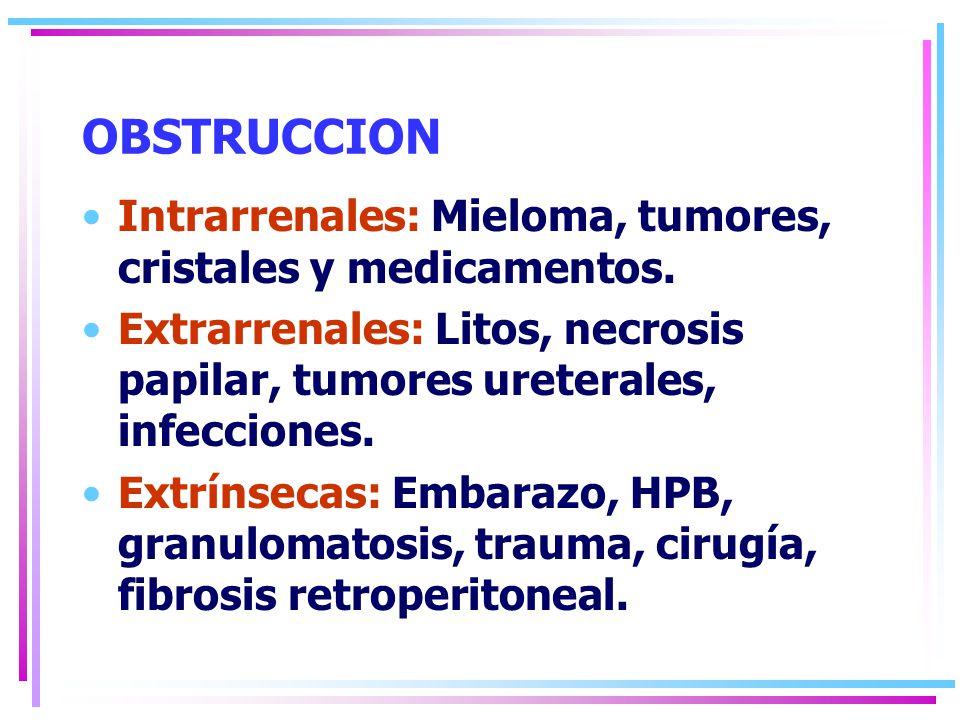 OBSTRUCCION Intrarrenales: Mieloma, tumores, cristales y medicamentos.