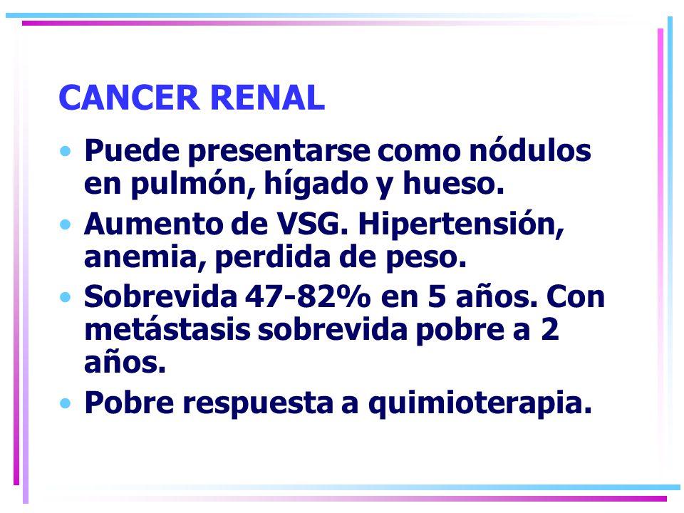 CANCER RENAL Puede presentarse como nódulos en pulmón, hígado y hueso.