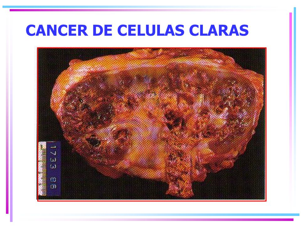 CANCER DE CELULAS CLARAS