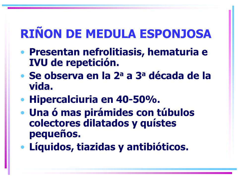 RIÑON DE MEDULA ESPONJOSA