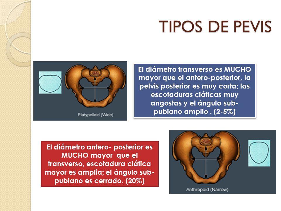 TIPOS DE PEVIS