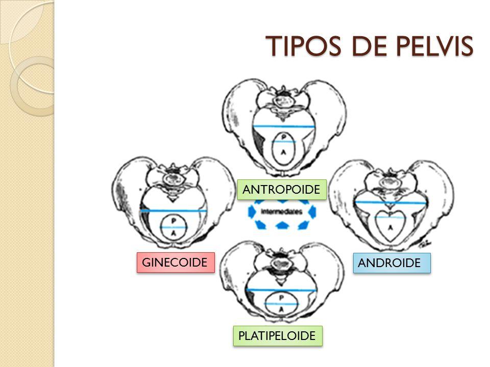 TIPOS DE PELVIS ANTROPOIDE GINECOIDE ANDROIDE PLATIPELOIDE