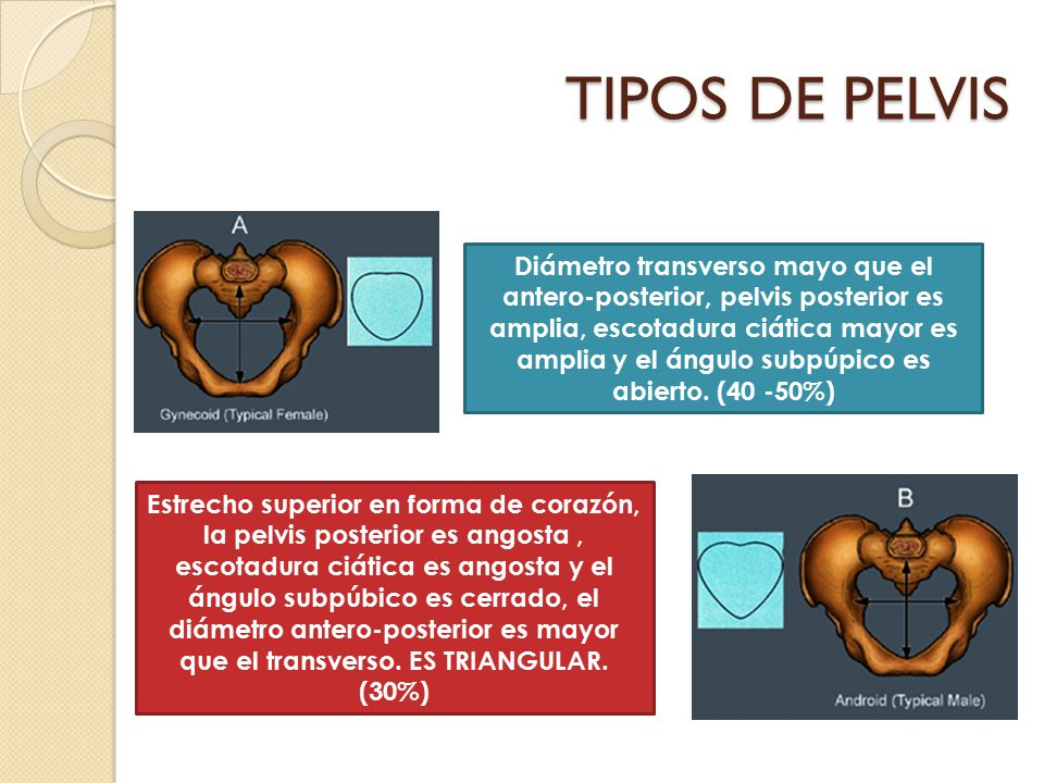 TIPOS DE PELVIS