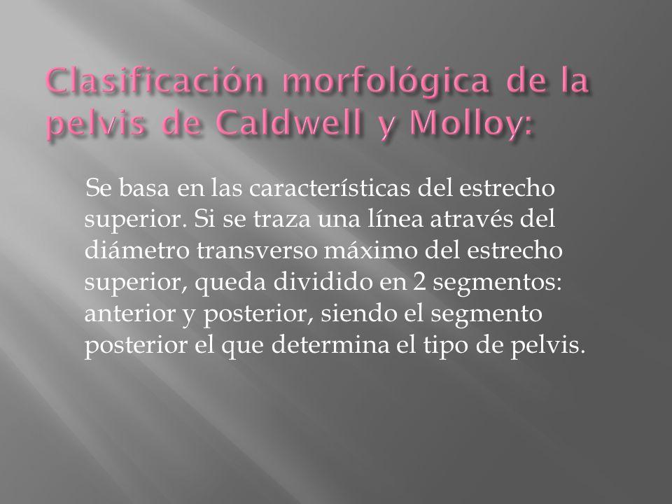 Clasificación morfológica de la pelvis de Caldwell y Molloy: