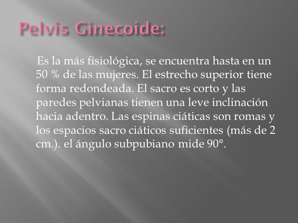 Pelvis Ginecoide: