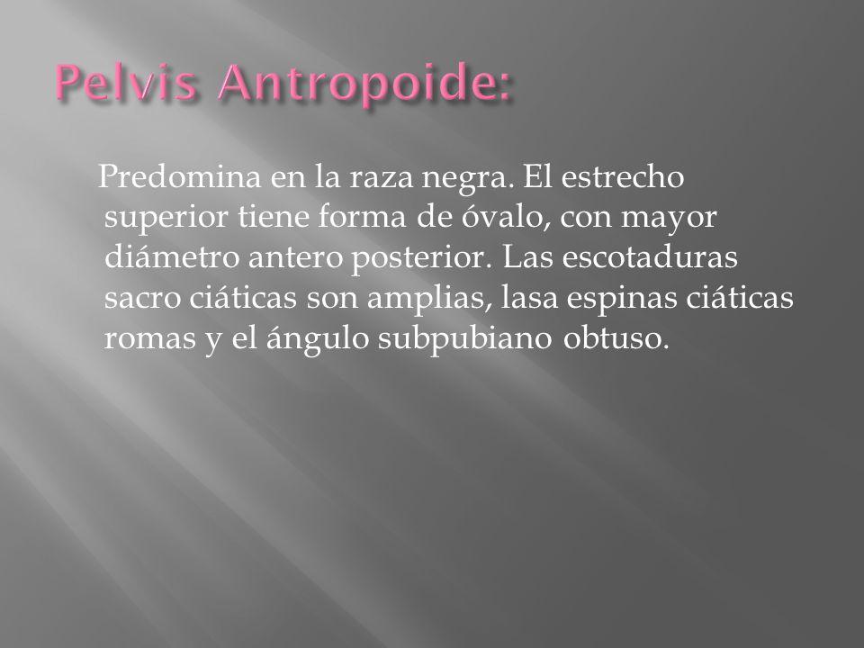 Pelvis Antropoide: