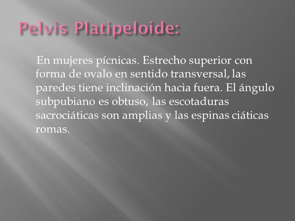Pelvis Platipeloide: