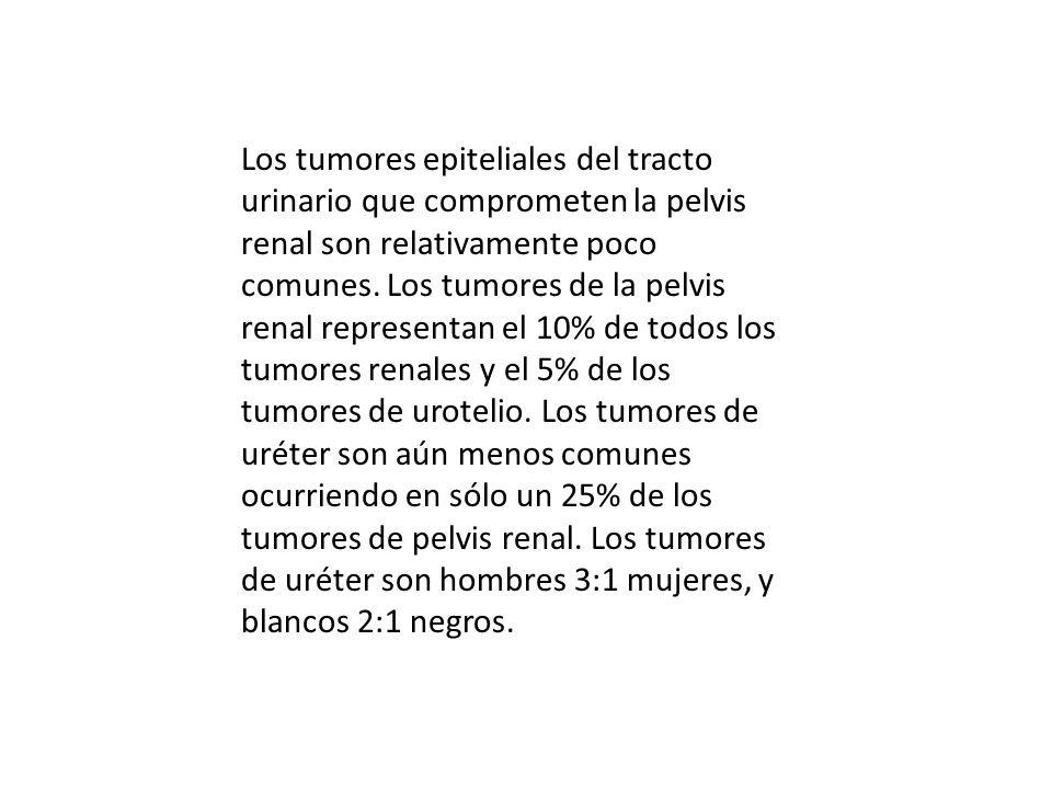 Los tumores epiteliales del tracto urinario que comprometen la pelvis renal son relativamente poco comunes.
