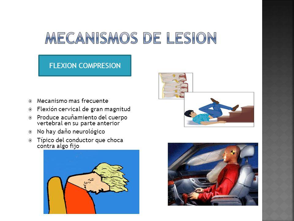 MECANISMOS DE LESION FLEXION COMPRESION Mecanismo mas frecuente