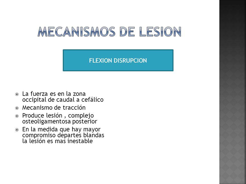 MECANISMOS DE LESION FLEXION DISRUPCION