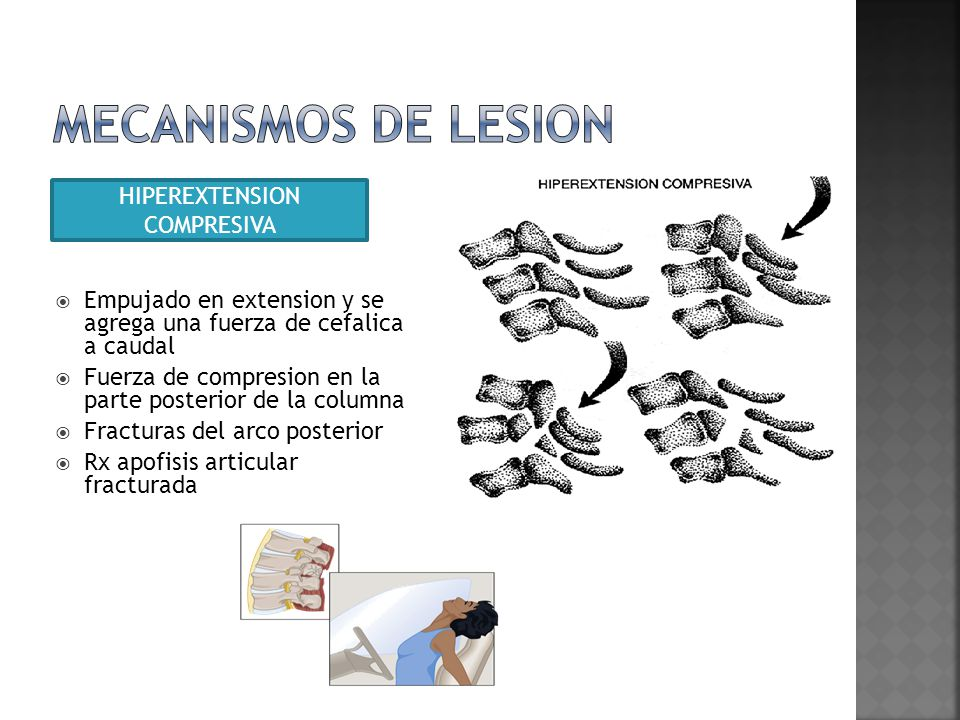 HIPEREXTENSION COMPRESIVA