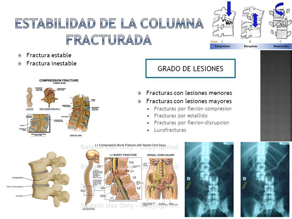 Estabilidad de la columna fracturada