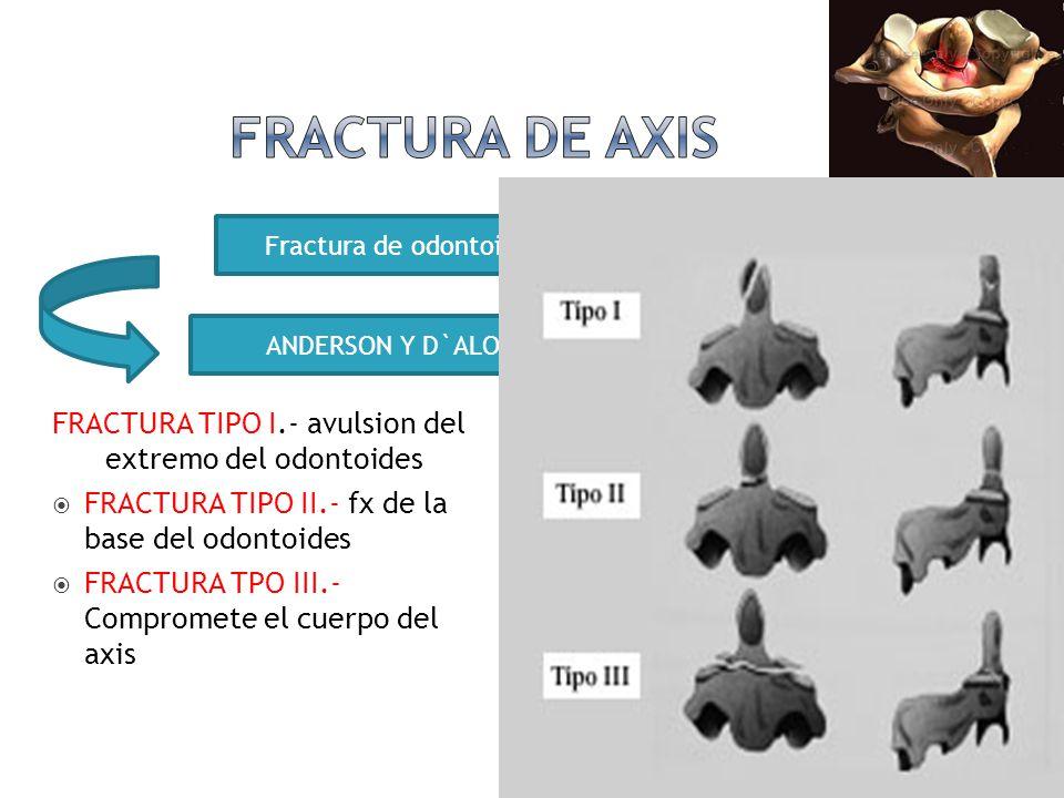 Fractura de odontoides