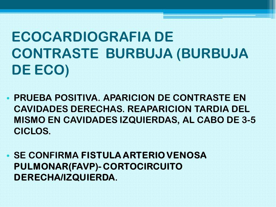 ECOCARDIOGRAFIA DE CONTRASTE BURBUJA (BURBUJA DE ECO)