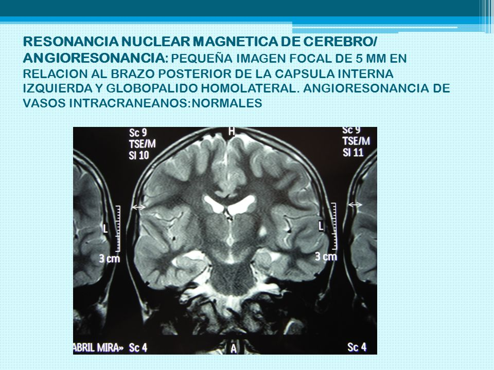 RESONANCIA NUCLEAR MAGNETICA DE CEREBRO/ ANGIORESONANCIA: PEQUEÑA IMAGEN FOCAL DE 5 MM EN RELACION AL BRAZO POSTERIOR DE LA CAPSULA INTERNA IZQUIERDA Y GLOBOPALIDO HOMOLATERAL.