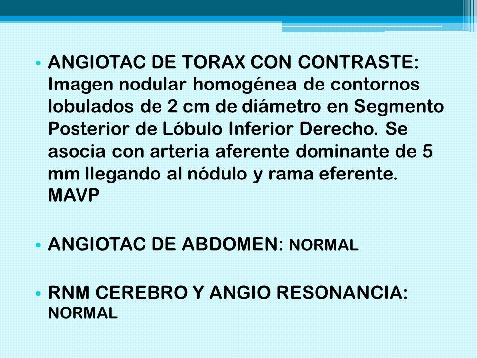 ANGIOTAC DE TORAX CON CONTRASTE: Imagen nodular homogénea de contornos lobulados de 2 cm de diámetro en Segmento Posterior de Lóbulo Inferior Derecho. Se asocia con arteria aferente dominante de 5 mm llegando al nódulo y rama eferente. MAVP