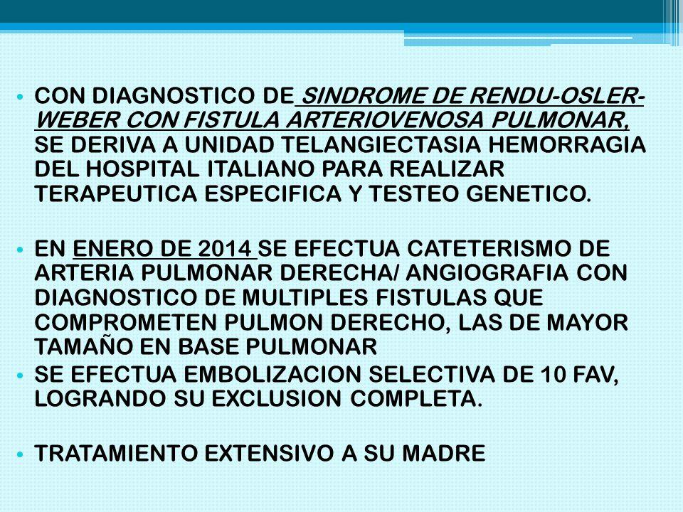 CON DIAGNOSTICO DE SINDROME DE RENDU-OSLER- WEBER CON FISTULA ARTERIOVENOSA PULMONAR, SE DERIVA A UNIDAD TELANGIECTASIA HEMORRAGIA DEL HOSPITAL ITALIANO PARA REALIZAR TERAPEUTICA ESPECIFICA Y TESTEO GENETICO.