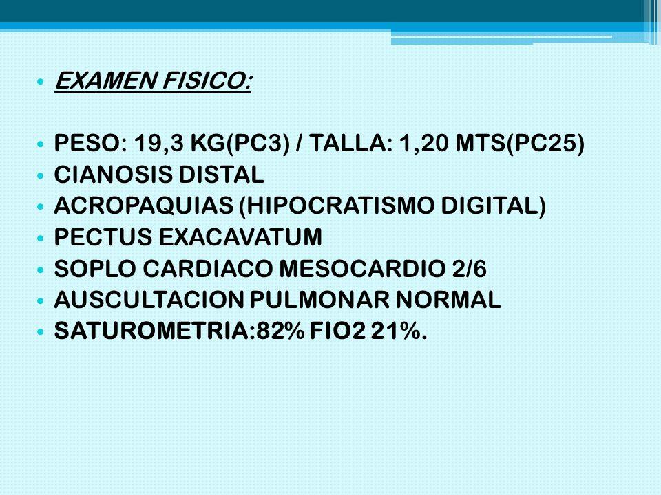 EXAMEN FISICO: PESO: 19,3 KG(PC3) / TALLA: 1,20 MTS(PC25) CIANOSIS DISTAL. ACROPAQUIAS (HIPOCRATISMO DIGITAL)