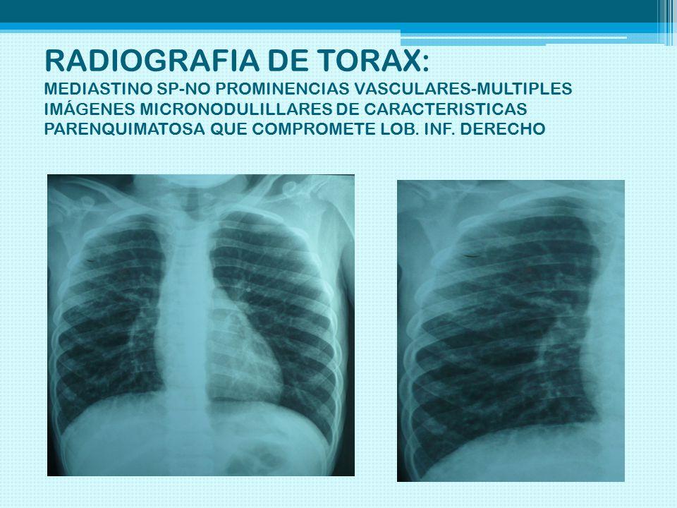 RADIOGRAFIA DE TORAX: MEDIASTINO SP-NO PROMINENCIAS VASCULARES-MULTIPLES IMÁGENES MICRONODULILLARES DE CARACTERISTICAS PARENQUIMATOSA QUE COMPROMETE LOB.