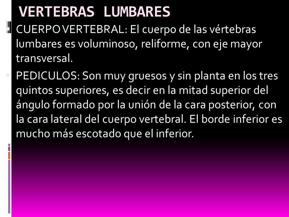 VERTEBRAS LUMBARES CUERPO VERTEBRAL: El cuerpo de las vértebras lumbares es voluminoso, reliforme, con eje mayor transversal.