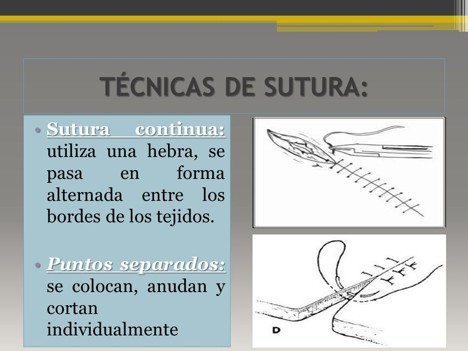 TÉCNICAS DE SUTURA: Sutura continua: utiliza una hebra, se pasa en forma alternada entre los bordes de los tejidos.