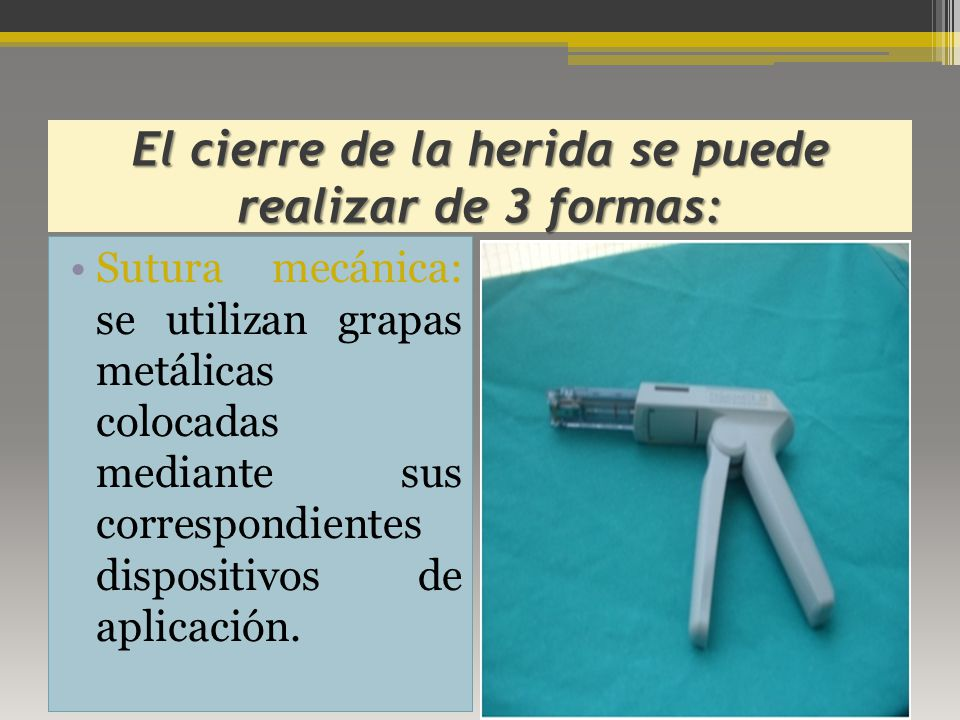 El cierre de la herida se puede realizar de 3 formas: